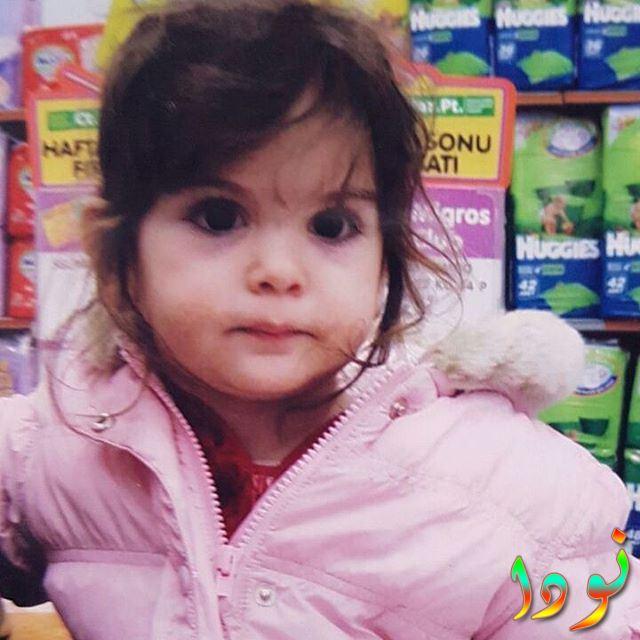 مليسا جيز سينجيز وهي طفلة صغيرة
